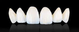 Veneers at Bomstad Dental