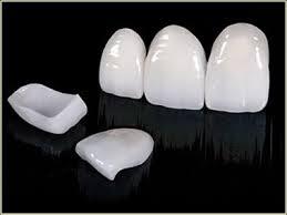 Veneers at Bomstad Dental