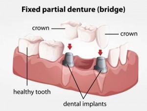 Bridge Implant