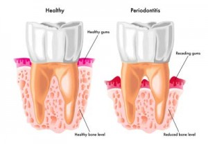 Gum Disease and Heart Disease