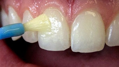 Varnish Fluoride Treatment