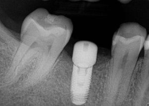 implant website